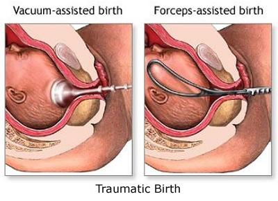 Lifetime Effects of Traumatic Birth