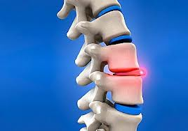 Non-surgical Spinal Disc Decompression