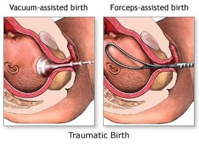 Lifetime Effects of Traumatic Birth