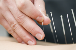 Acupuncture and Chinese Herbal Medicine